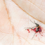 mosquito-on-palm